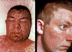 Images of men with Smallpox
